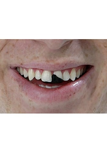 Chipped Tooth Wax